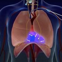 Image d'un système de stimulation du diaphragme.