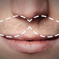 Très gros plan sur le bas du visage d'un homme. Sous le nez, un pointillé en blanc dessinant une moustache.