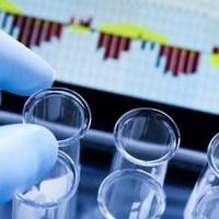 Une main avec un gant prend une éprouvette dans un laboratoire.