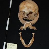 Le squelette d'un homme.
