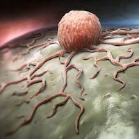 Représentation artistique d'une tumeur cancéreuse.
