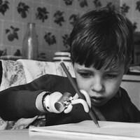 Un petit garçon victime de la thalidomide dans les années 1960