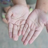 Une personne montre ses mains ratatinées.