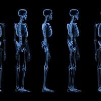 Une radiographie montre le squelette d'un être humain.