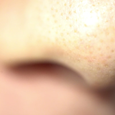 On voit en gros plan le nez d'un homme.