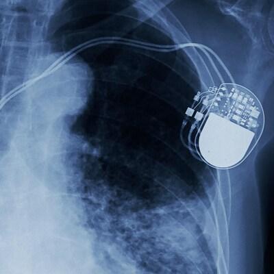 Le stimulateur cardiaque d'un patient apparaît sur une radiographie.