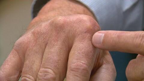 Un homme souffrant d'arthrite rhumatoïde