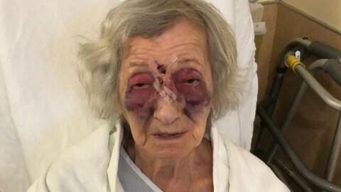 Mme Fogelman sur son lit d'hôpital avec de multiples ecchymoses.