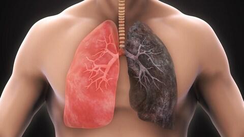 Illustration d'un poumon sain et d'un poumon atteint de la MPOC.