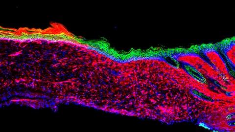 Image des tissus de la peau.