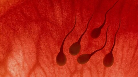 Des spermatozoïdes