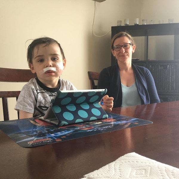 Une jeune et sa mère assis à la table de cuisine. Le jeune a des pansements au visage.