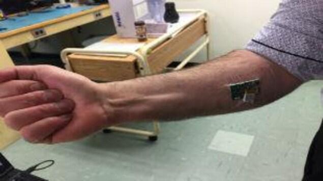 Image extraite de la capsule: gros plan sur un bras sur lequel a été placé des micro-capteurs intelligents. Expérience pour améliorer la technologie des mains robotisées pour les personnes handicapées.