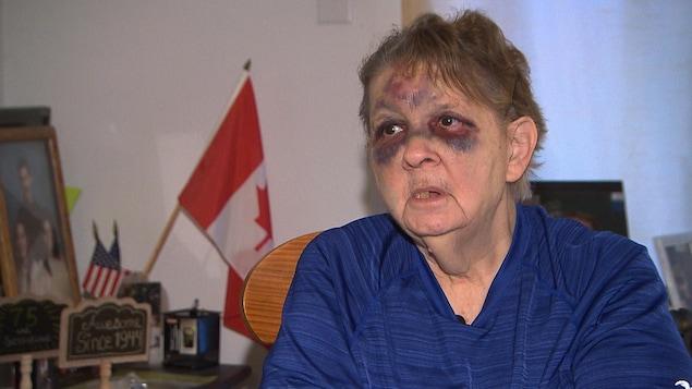 Barbara Currie Markous donne une entrevue dans son salon. Elle a des ecchymoses sur les deux yeux et le front.