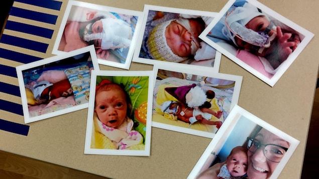 Sept photos d'un bébé prématuré sont disposées pêle-mêle sur une table.