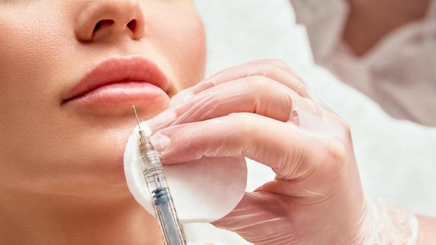 Injection de Botox dans les lèvres.