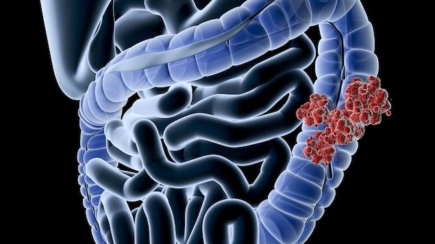 Illustration médicale numérique d'une perspective radiographique d'un cancer colorectal.