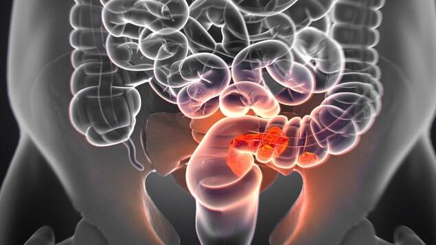 Illustration montrant des tumeurs cancéreuses dans un intestin.