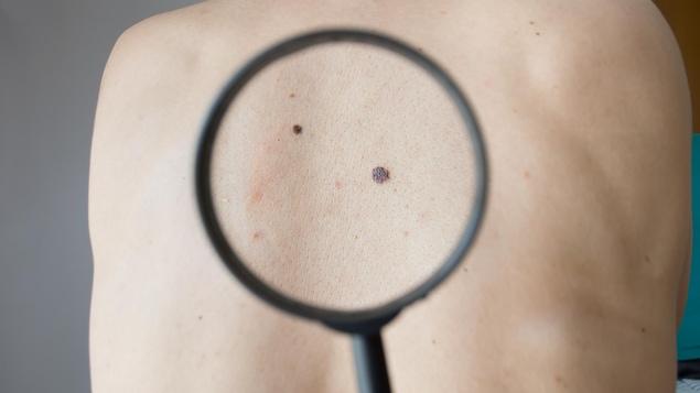 La peau d'une personne
