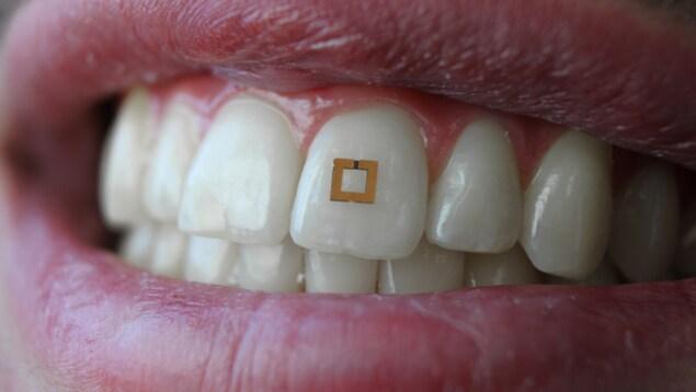 Le capteur mesure 2 mm sur 2 mm et adhère à la surface irrégulière d'une dent.
