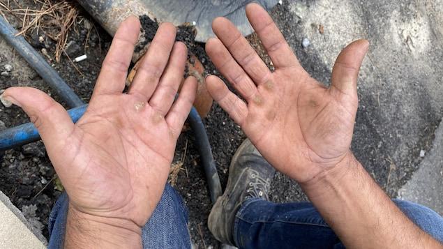 Les mains mains calleuses de Carlos Baena. Ce migrant dit que chaque jour, il travaille entre 12 et 14 heures.