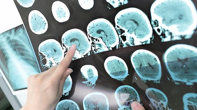 Images du cerveau d'un patient atteint de sclérose en plaques