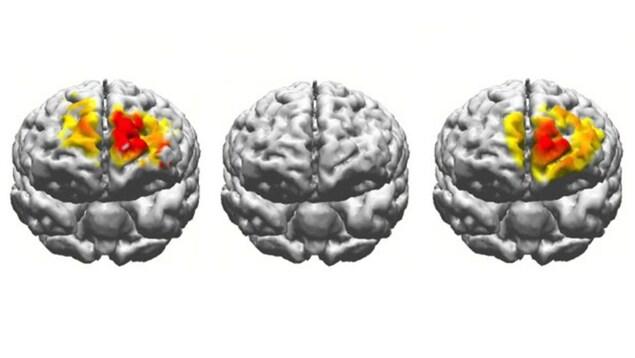 On voit une représentation de l'activité cérébrale de trois cerveaux.