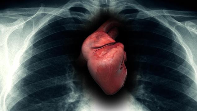 Un coeur dans une cage thoracique.