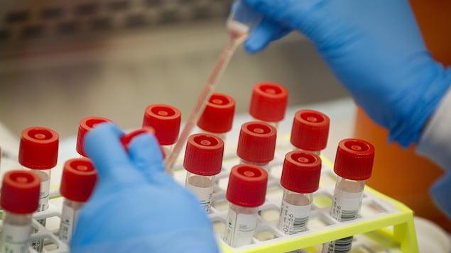 Une personne portant des gants prépare des éprouvettes pour des tests de dépistage.