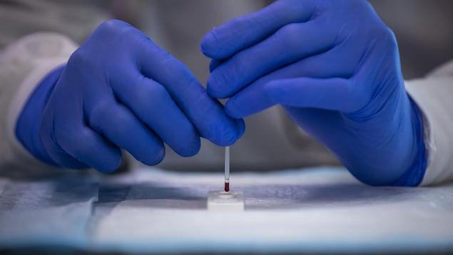 Des mains gantées manipulent un outil de laboratoire duquel pend une goutte de sang.
