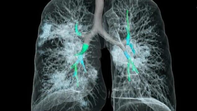 Une tomodensitométrie des poumons d'un homme atteint de COVID-19.
