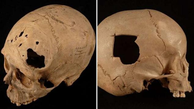 Des crânes humains