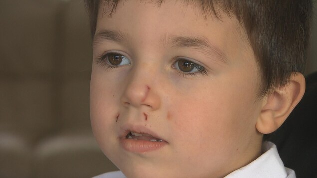 Gros plan sur le visage d'un enfant mordu par un chien. Des marques sont visibles au-dessus de la lèvre supérieure et sur le nez.