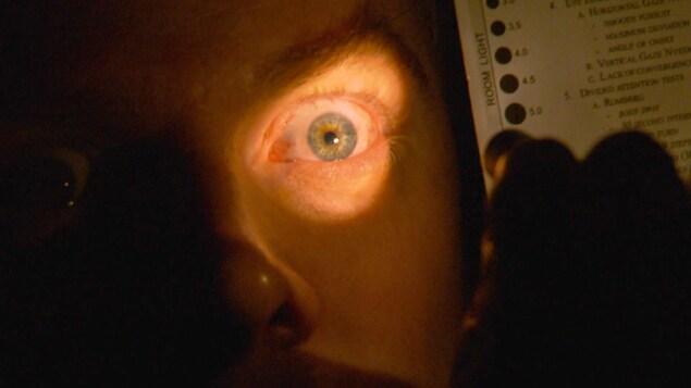 Un test de dilatation des pupilles lors d'un examen pour la détection du cannabis au volant.