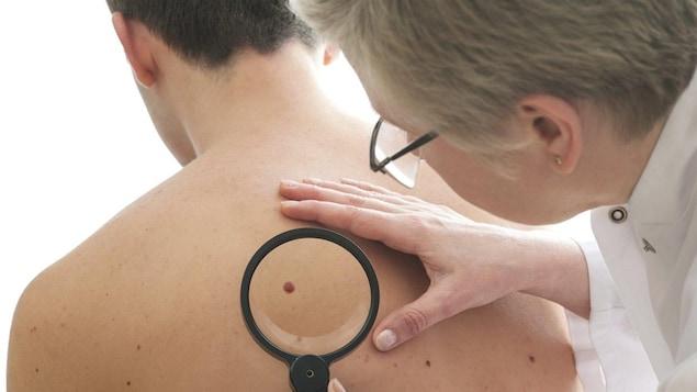 Une dermatologue examine un patient.