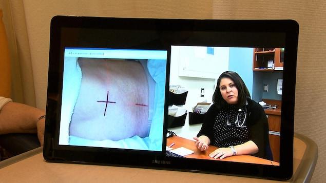 Une médecin explique sur le site web cancergaspesie.ca le déroulement d'une opération chez un patient atteint de cancer.
