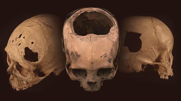 Des crânes perforés lors d'une chirurgie