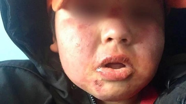 Un garçon avait des éruptions cutanées sur son visage.