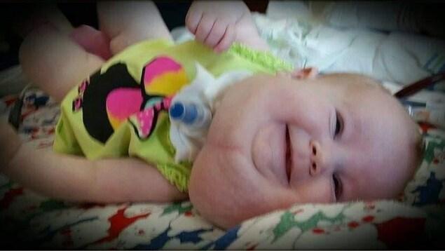 Une petite fille couchée atteinte d'une malformation du système lymphatique qui se forme généralement dans le cou
