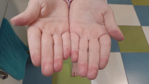 Deux mains blessées
