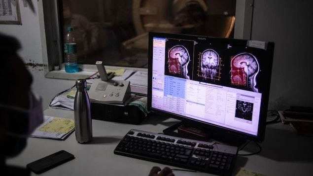 Un homme analyse une image d'un cerveau sur un ordinateur.