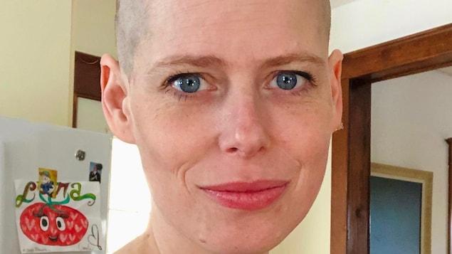 Nathalie Plaat avec les cheveux rasés.