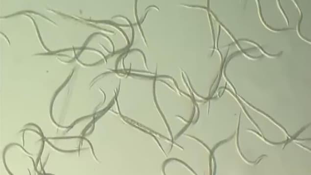 Des nématodes, grossis au microscope.