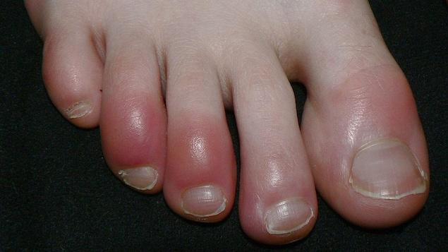 Des engelures au pied.