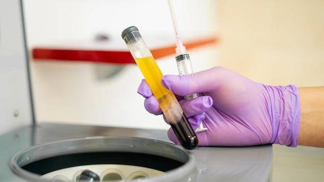 Une éprouvette contenant du sang séparé en trois couches distinctes.
