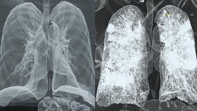 On voit deux paires de poumons, visualisées à l'aide de l'imagerie médicale. Ceux de gauche sont plus foncés, apparaissent normaux. Ceux de droite sont pâles, ce qui indique qu'ils sont affectés par la maladie.