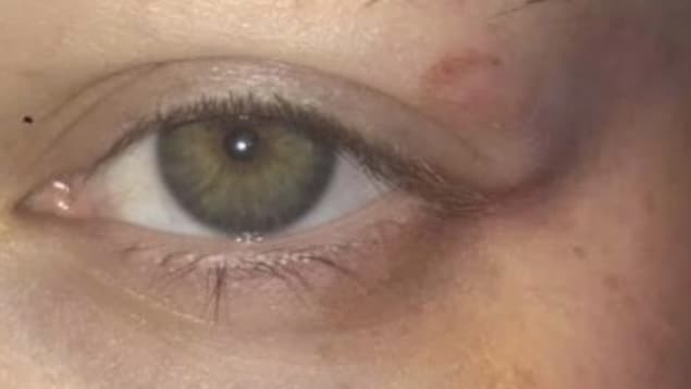 Une ecchymose se trouve à côté d'un oeil.