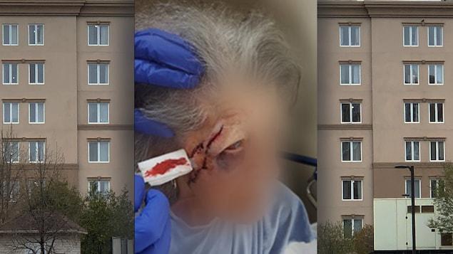 Photo de blessures d'une dame âgée.