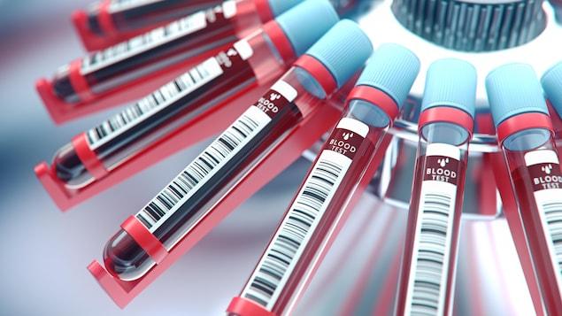 Des échantillons de sang et de l'équipement de laboratoire.