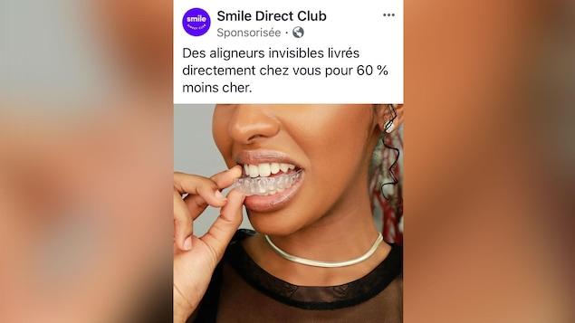 Une publicité Facebook de Smile Direct Club où l'on voit une jeune femme insérant ses broches invisibles dans sa bouche. La compagnie y écrit : «Des aligneurs invisibles livrés directement chez vous pour 60 % moins cher. »